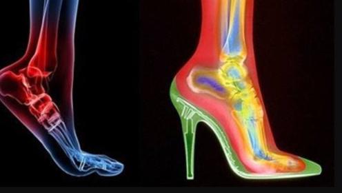 爱美的女生长期穿高跟鞋,十年后会有什么变化?答案让人不敢相信