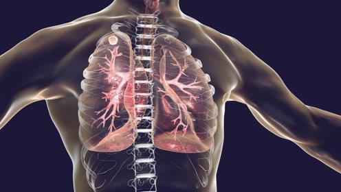 注意:身上两处出现凸起,多半是肺在喊救命
