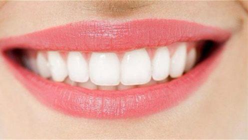 """牙齿上难闻的""""黄泥""""别再抠,教你个简单方法,牙垢自己掉下来"""