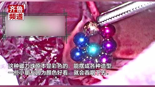 警惕!2岁男童误食磁力珠,腹中绞成手链,小肠5处穿孔