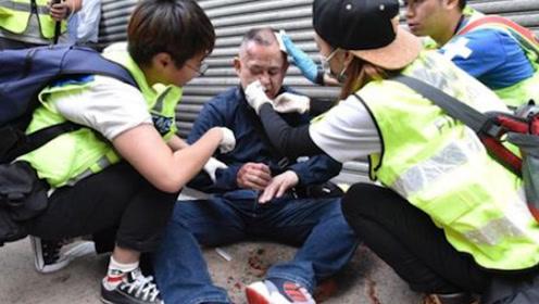 得知香港暴徒疯狂殴打日本游客 日本网友气炸:这不是暴行是什么