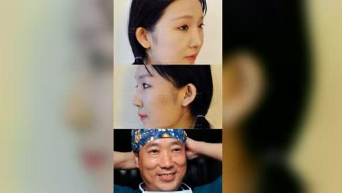 超长曲线下颌角截骨案例