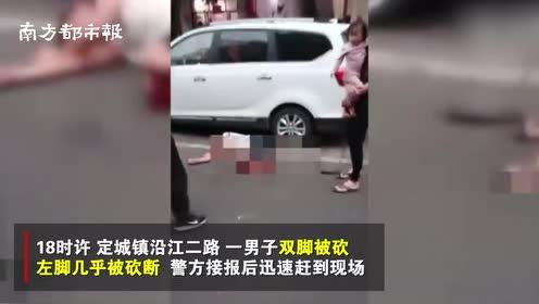 海南一男子因感情纠葛砍人双脚?当地警方:受害人左脚已接上