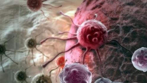 人发烧到43度,能不能杀死癌细胞?医生:高烧的伤害不亚于癌症
