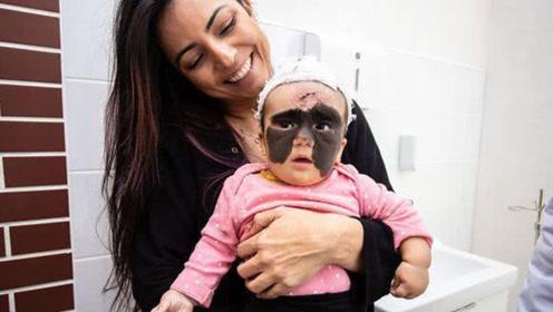 女婴天生胎记犹如蝙蝠侠面罩,经过8个月治疗,如今模样让人惊艳