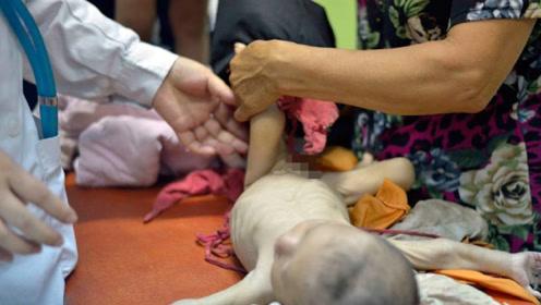 2岁儿子交给婆婆4个月,却变得骨瘦如柴,真相让宝爸当场暴怒!