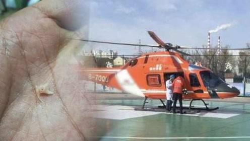 11月大女婴吃鱼泥,吞下鱼骨险窒息,直升机40分钟跨市转院