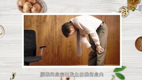 腰疼、背疼、屁股疼,是腰间盘突出吗?3个方法,快速自查