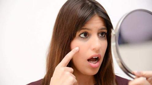黑眼圈严重,要警惕这些疾病的发作!