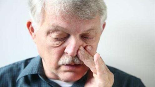 人的鼻毛突然变白色,身体暗示什么?也许三个原因造成