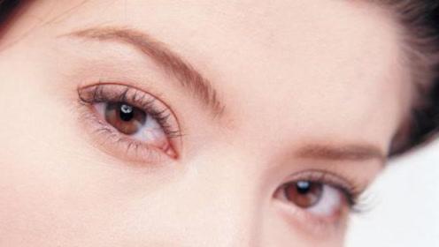 为什么一觉醒来,眼角总是会有眼屎?医生提醒:这种情况要小心!