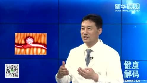 健康解码-刘加春讲述:颅内动脉瘤破裂出血该怎么办?