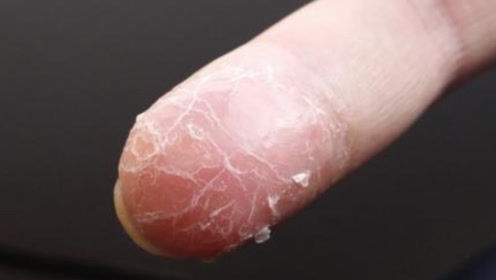 手指蜕皮,是因为皮肤干燥?要注意,身体已经发出警告!