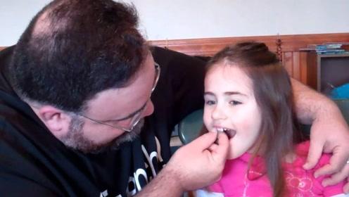 爸爸给小萝莉拔牙,一个不注意手起刀落,几秒钟才反应过来