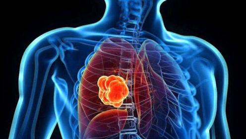 英国新技术可较早检测出肺癌,网友:越早越好,很多人等不起的