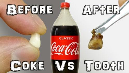 将牙齿放入可乐整整7天,取出后会是什么样子?网友:不敢喝了