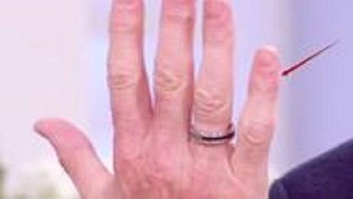 小拇指长短决定你一生命运,其中暗藏的玄机你了解吗?