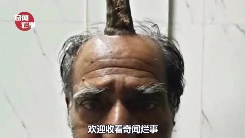 """印度男子头部受伤长出""""牛角""""背后原因简直让人匪夷所思"""
