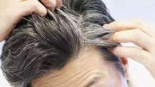 白发不要染,洗头时用它抹一抹,快速让你的头发又黑又亮!