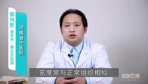 如何早期诊断胰腺癌 影像学诊断