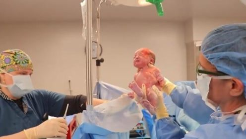 这新生儿好脏啊,爸爸一通操作后,最后变得好漂亮!