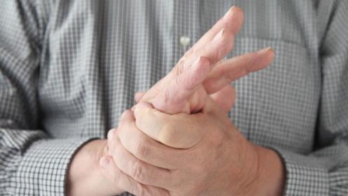 """身体出现4种不适症状,可能是血栓在""""作怪""""!早知道早预防"""