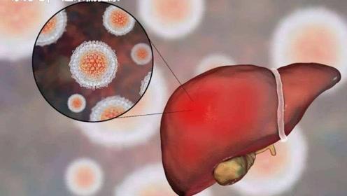 脂肪肝饿肚子不吃饭能减下去?当心营养不良