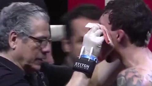 慎入!十分血腥的裸拳比赛,拳手不留余力打到满脸血