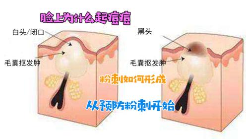 脸上不想起痘痘,就从预防粉刺生成开始