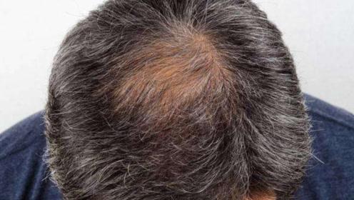 人到中年,白发又脱发?坚持这些小妙招,一周让白发慢慢变黑
