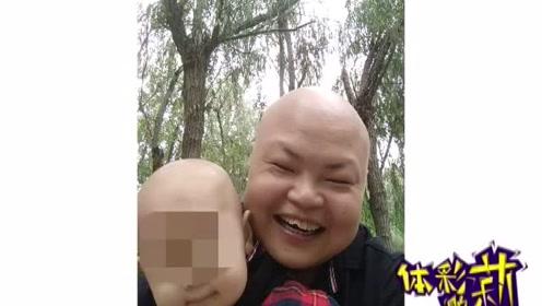 一岁多孩子突发急性白血病,父亲急白了头:剃光头要和孩子一样