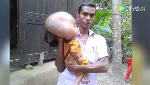 孟加拉国2岁男孩患脑水肿 头重18斤且仍生长