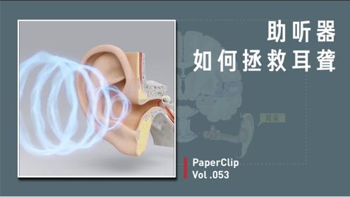 助听器如何拯救耳聋?