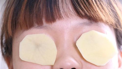 切两片土豆贴眼睛上,很多人不知道有啥用,原来这么厉害