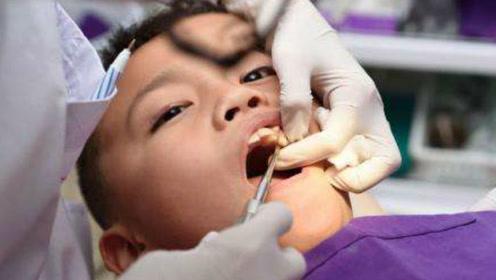 7岁男孩下颚肿胀,医生口中拔出526颗牙