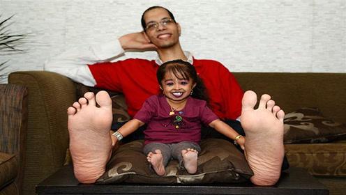 身高71厘米的孕妇,不顾医生劝阻连生4胎,孩子健康令人担忧