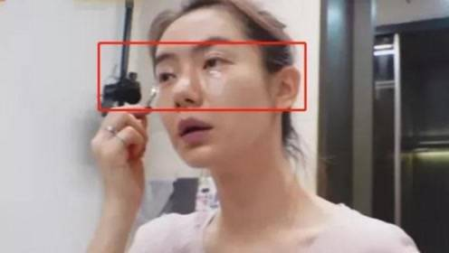 戚薇不惧流言展现素颜,双眼皮刀疤明显,网友:太真实了!