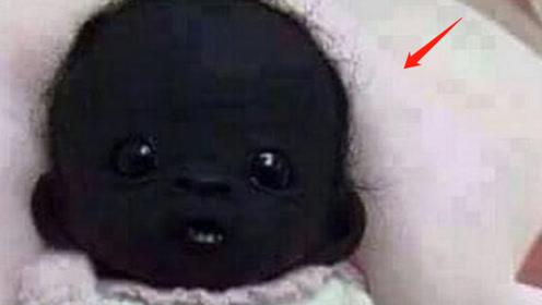 """当年的""""煤炭""""小黑孩,现在过得怎么样了?答案让人发笑!"""