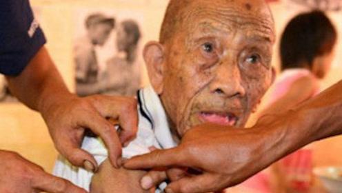 108岁抗战老兵身中五颗子弹,77年未取出,如今已被裹成肉球