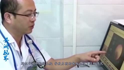 8岁男孩突然开始咳血,医生检查其喉咙有异物蠕动,没想到是蚂蟥!
