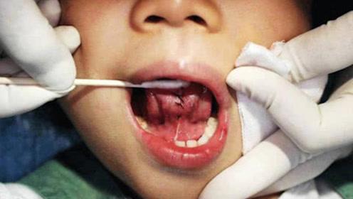 为什么宝宝刚出生一定要剪掉舌根,如果不剪会怎样?被让无知害了孩子!