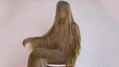 毛发最旺盛的女人,帅哥排队追求,如今竟成这样