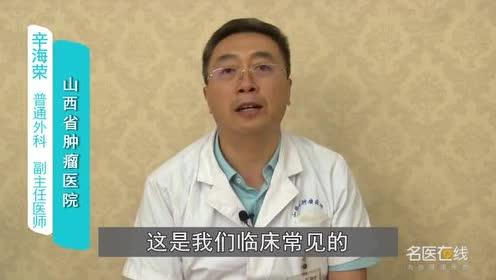 什么是肠道肿瘤