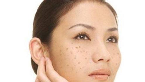 脸上黑色素沉淀有色斑?教你一招,牙膏加它混合抹脸,皮肤白嫩细滑