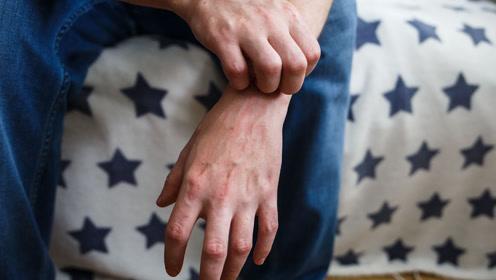 出现这样的瘙痒,你可能是患了结节性痒疹,这些事项一定需注意