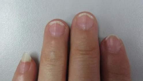 """指甲竖纹要留意,或许""""暗示""""了这三种情况,别大意了!"""