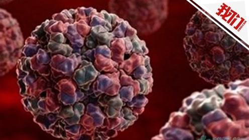 天津理工大学通报部分学生呕吐、腹泻症状病因:感染诺如病毒