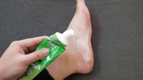 牙膏涂抹在脚上,原来还有这么多妙用,学会受用终身
