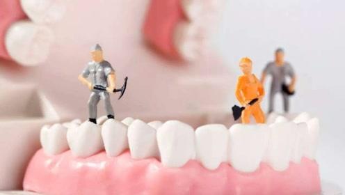 洗牙会让牙缝变大、牙齿松动吗?辟谣:对牙周炎患者,好处很多