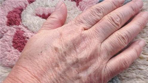 手部粗糙起皮不用愁?一个小方法,皮肤立马光滑细嫩,省钱又省心